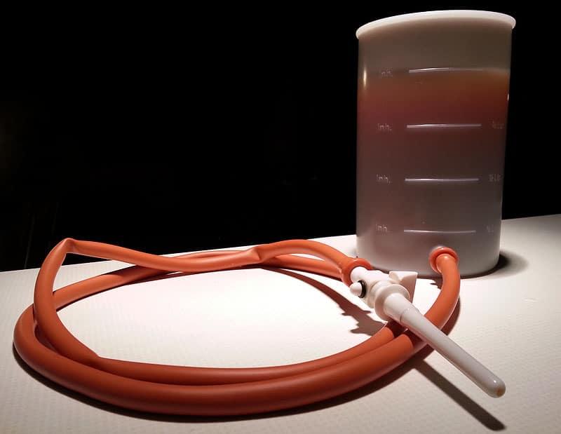 Entgiften Kaffee Einlauf Irrigator Set